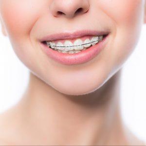 Fast unsichtbare feste Zahnspange mit Keramikbrackets
